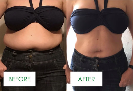 before and after the CJA Lifestyle Plan